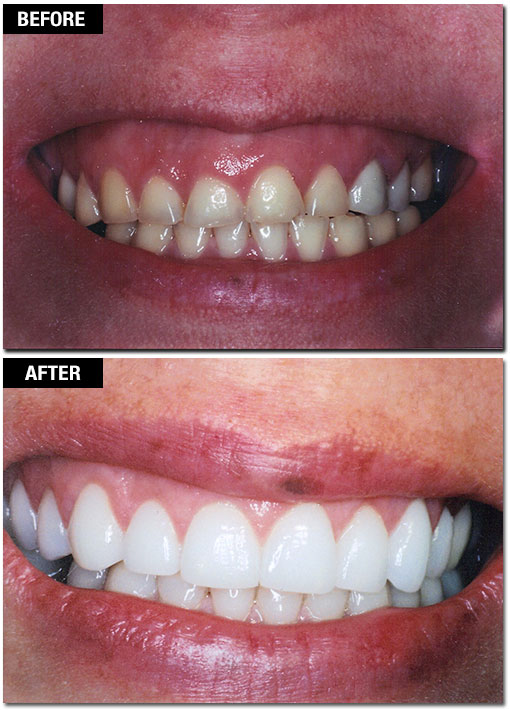 Gum Lift/Gummy Smile Correction - Before and After