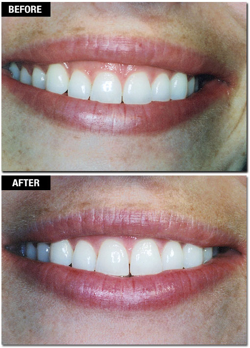 Cosmetic Laser Gum Surgery - Before and After