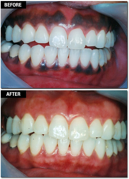 Laser Gum Pigmentation Removal - Before and After