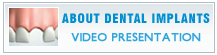 Dental Implants Video Presentation