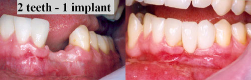2 Teeth with 1 Implant