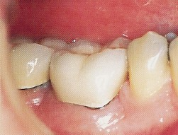 Periodontal (Gum Disease) Therapy - Crown Lengthening Surgery
