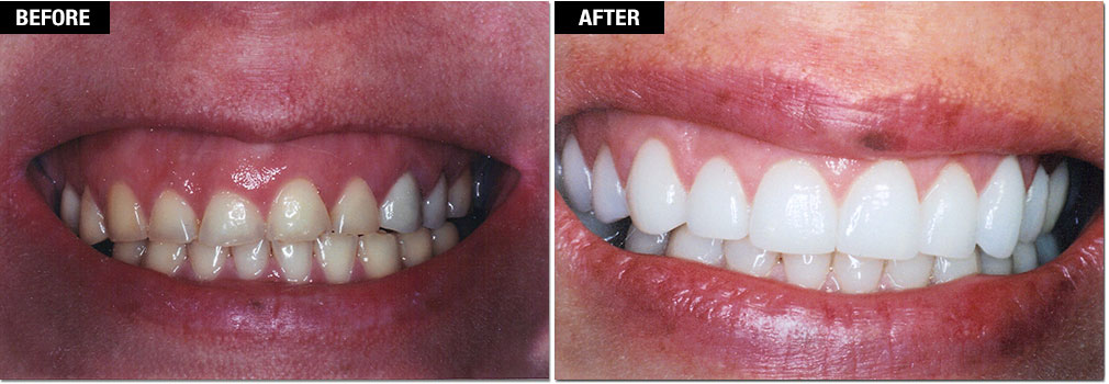 Smile Enhancement - Gum Lift/Gummy Smile Correction