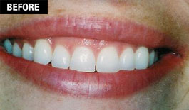 Smile Enhancement - Cosmetic Laser Gum Surgery